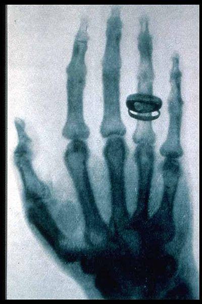 Ad:  400px-Roentgen-x-ray-von-kollikers-hand.jpg Gösterim: 2014 Boyut:  44.3 KB