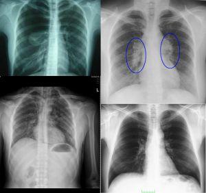 51915d1466895250 tuberkuloz verem gr1