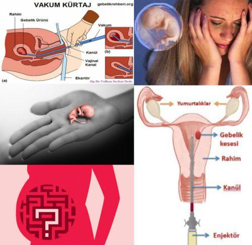 Kürtaj (Küretaj) Nedir