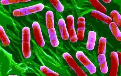 Ad:  Bakteri-4.jpg Gösterim: 1391 Boyut:  25.5 KB