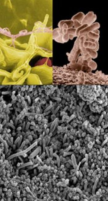 Ad:  Bakteriler-10.jpg Gösterim: 805 Boyut:  46.4 KB