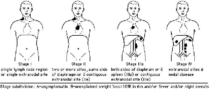 Ad:  lymphoma10.jpg Gösterim: 1798 Boyut:  75.7 KB